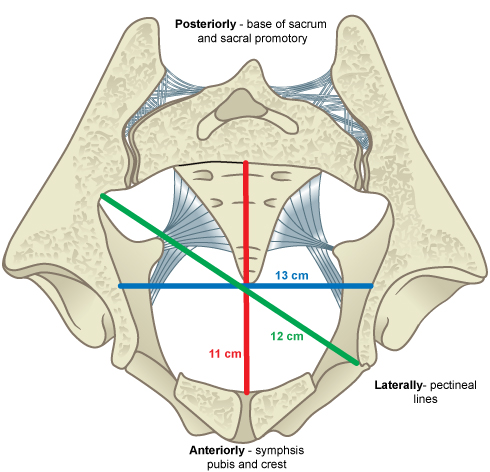Illustrated image showing the pelvic inlet.