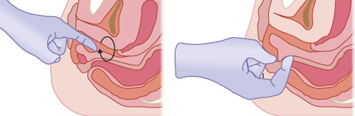 Illustrated image showing a perineal trauma assessment.