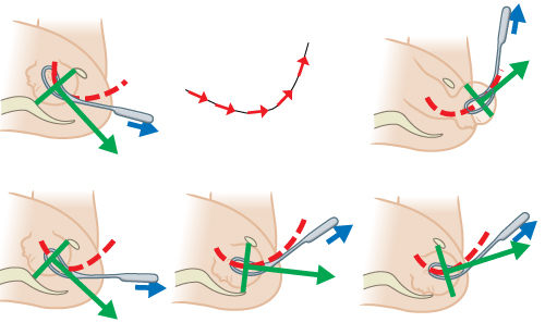 Illustrated images showing J-shape position using Kielland's forceps.