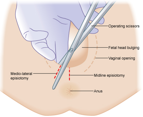 Illustrated image showing episiotomy.