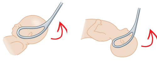 Illustrated image showing direct OP face delivery.