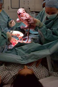 Image showing a caesarean section being performed.
