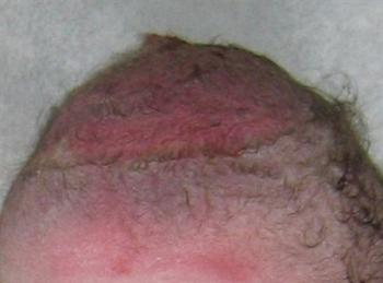 Image of vacuum extraction bruised scalp