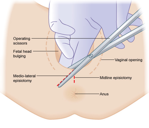 Assessing need for episiotomy | eLearning