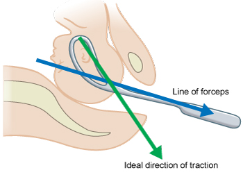Illustrated image showing traction direction.