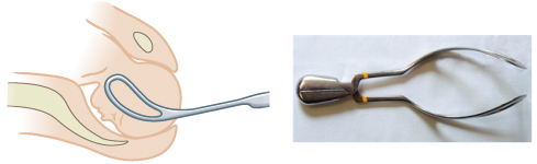 Images showing outlet forceps.