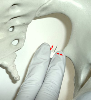 Image showing pudendal position.
