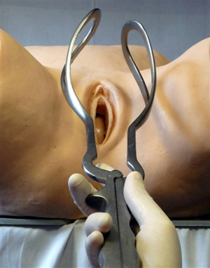 Image showing forcep application in between contractions.