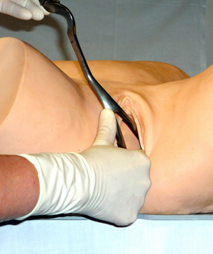 Image showing forcep application.
