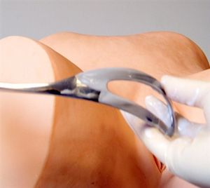 Image showing forceps blade.