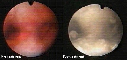 Image of pre- and post-treatment with NovaSure
