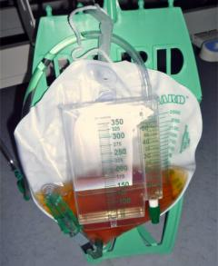Image showing a catheter bag.