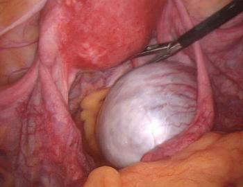Colour photo of cyst rupture