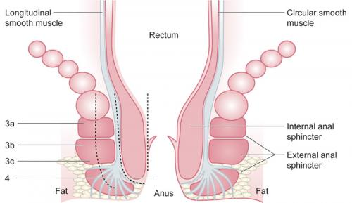 Illustrated image showing classification of perineal trauma depicted in a schematic representation  of anal sphincters.