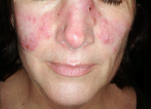 Woman with the typical 'butterfly' rash symptom of the disease