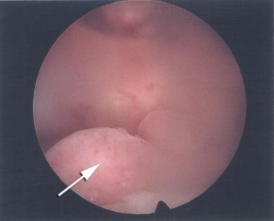 Colour image of midcavity polyp