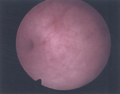 Colour image of normal uterine cavity showing left tubal ostia