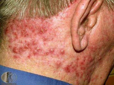 Photo of back of man's head, featuring severe folliculitis
